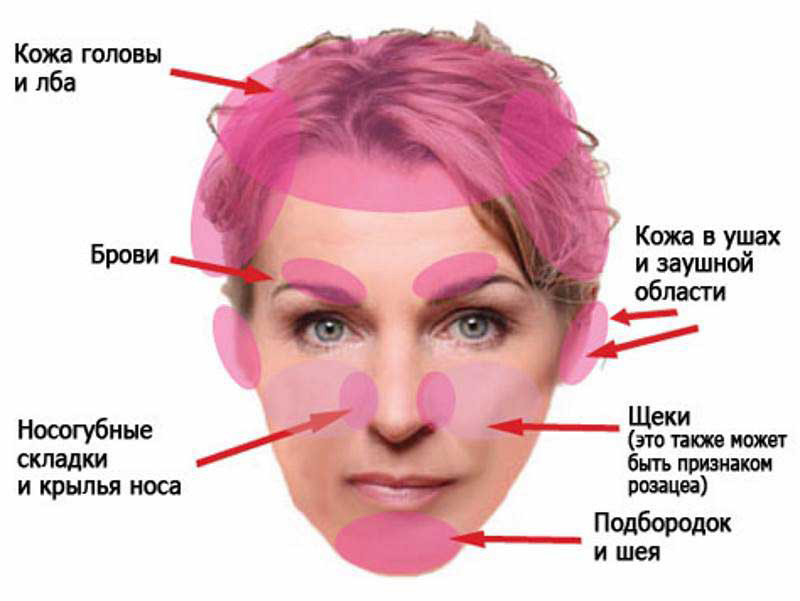 Симптоматика себорейного дерматита