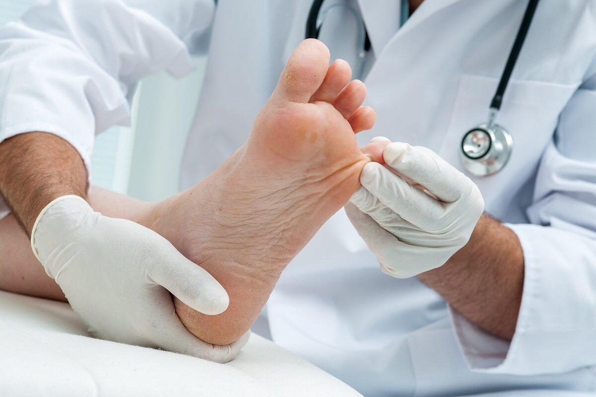 диагностика грибка ногтей
