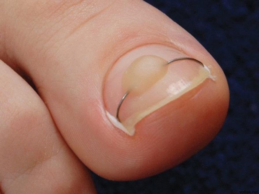 удаление вросшего ногтя лазером харьков цена