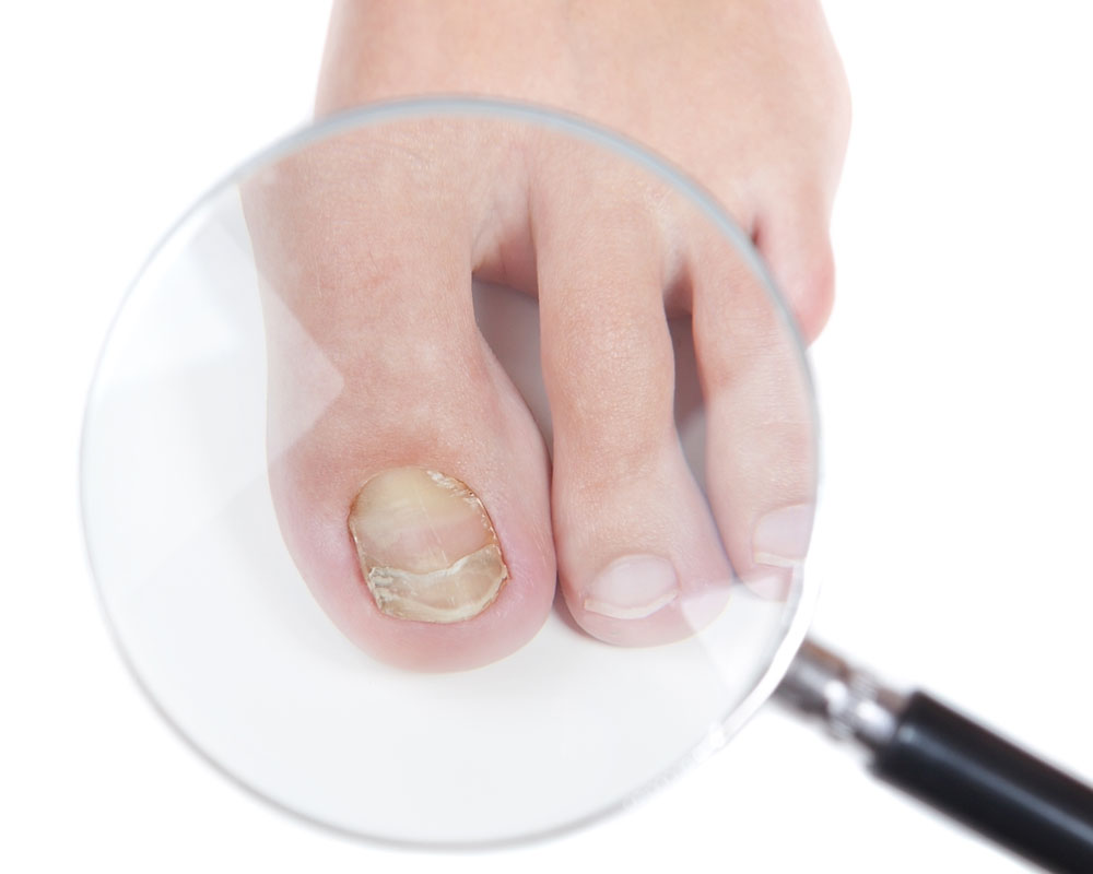 грибок ногтей онихомикоз лечение