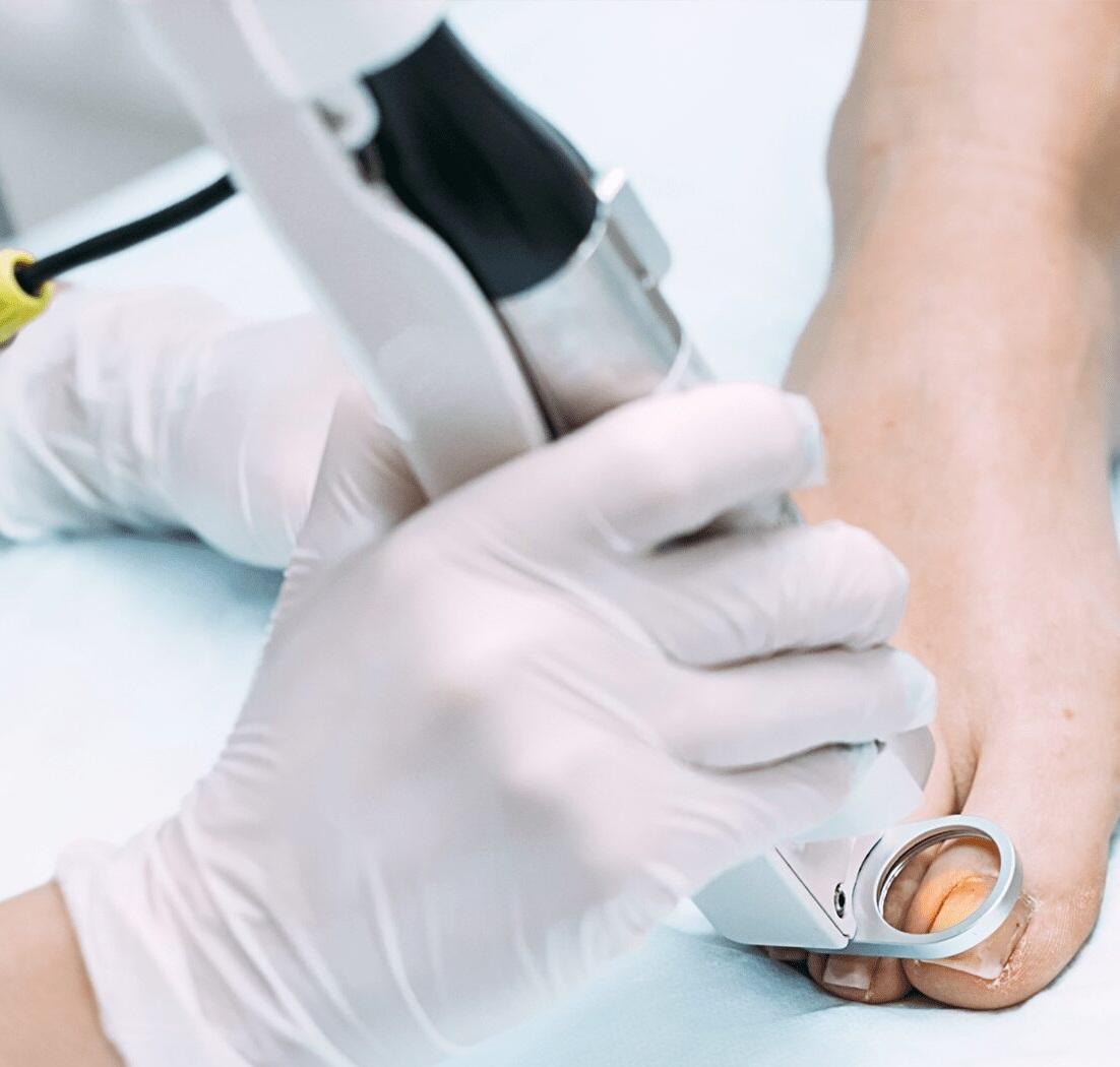 лазерное лечение грибка ногтей харьков