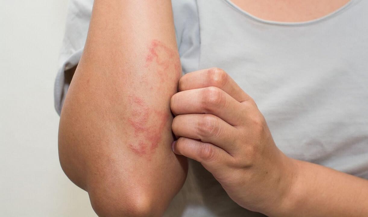 лечение атопического дерматита харьков