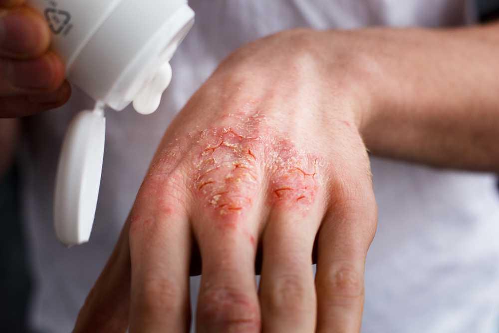 атопический дерматит лечение харьков цена