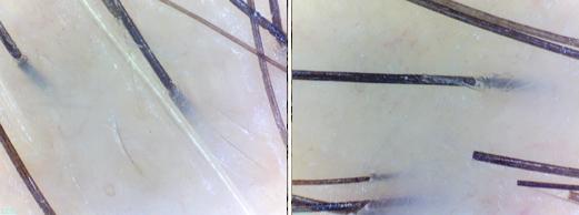 снимок с защитным стеклом
