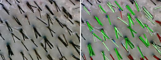 Образцы диагностических снимков с линзой x35