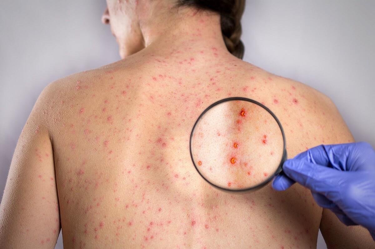 лечение сифилиса в харькове цены
