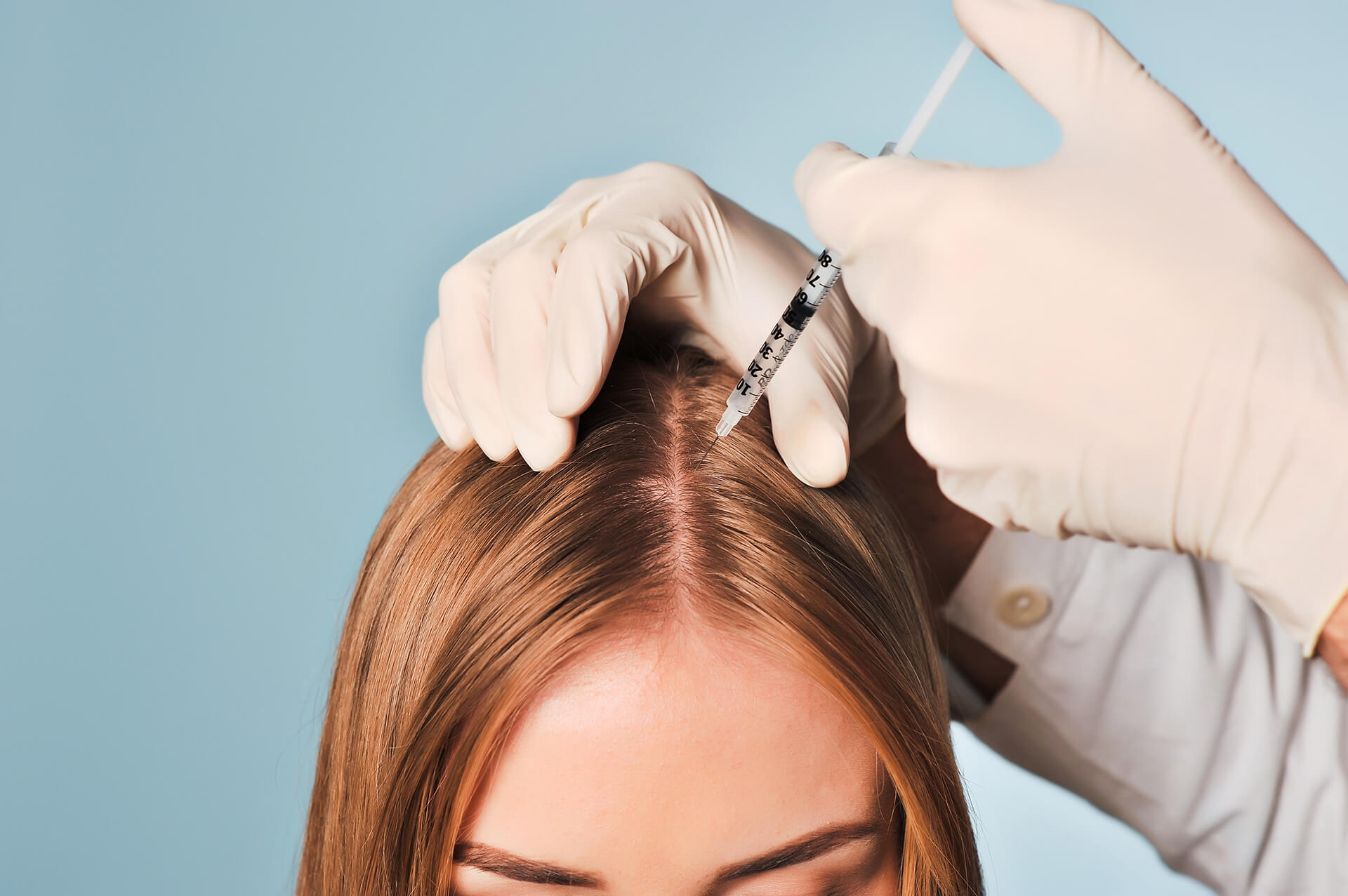 мезотерапия волос харьков цена