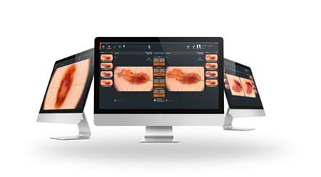 Диагностика новообразований кожи с помощью аппарата FotoFinder
